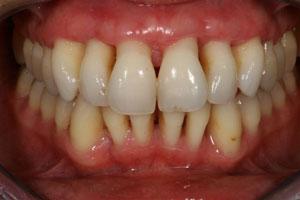 parodontit 24vinir